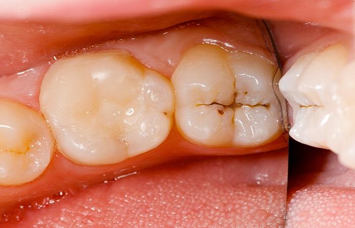 درمان پوسيدگي دندان